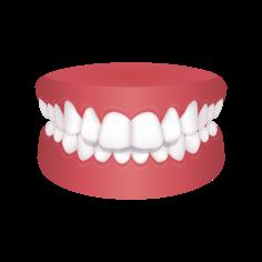 Crossbite – Chatfield Dental Braces