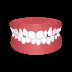 Crowded teeth – Chatfield Dental Braces
