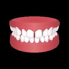 Gapped Teeth – Chatfield Dental Braces