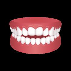 Openbite Teeth – Chatfield Dental Braces