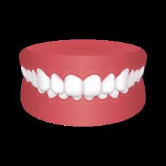 Overbite Teeth – Chatfield Dental Braces