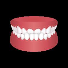 Underbite – Chatfield Dental Braces